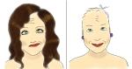 chemo hair loss, breast cancer, by kim dolan